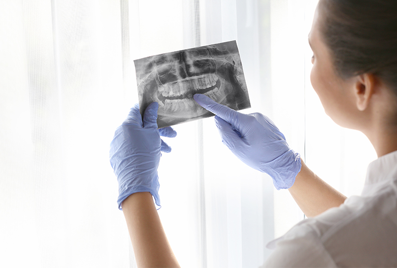 Docteur-Albert-Pinto-Soin-des-dents