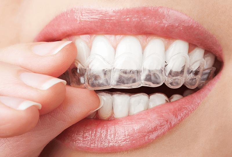 gouttières pour dents